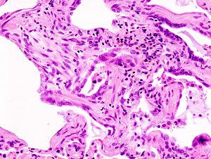 Histology IPF