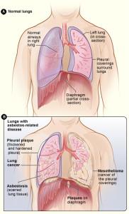 Asbestos pulmonary fibrosis